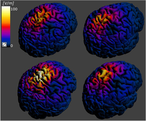 Effect of anatomical variability in brain on transcranial