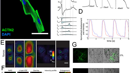 Modeling cardiac complexity: Advancements in myocardial